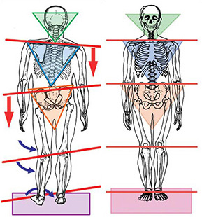 Image of two bodies; one with a crooked neck, shoulders, spine, pelvic bone, and legs; they other in perfect body alignment.